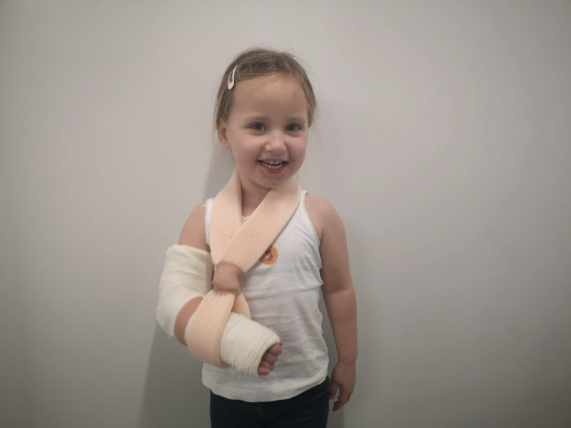 Erin's first plaster cast