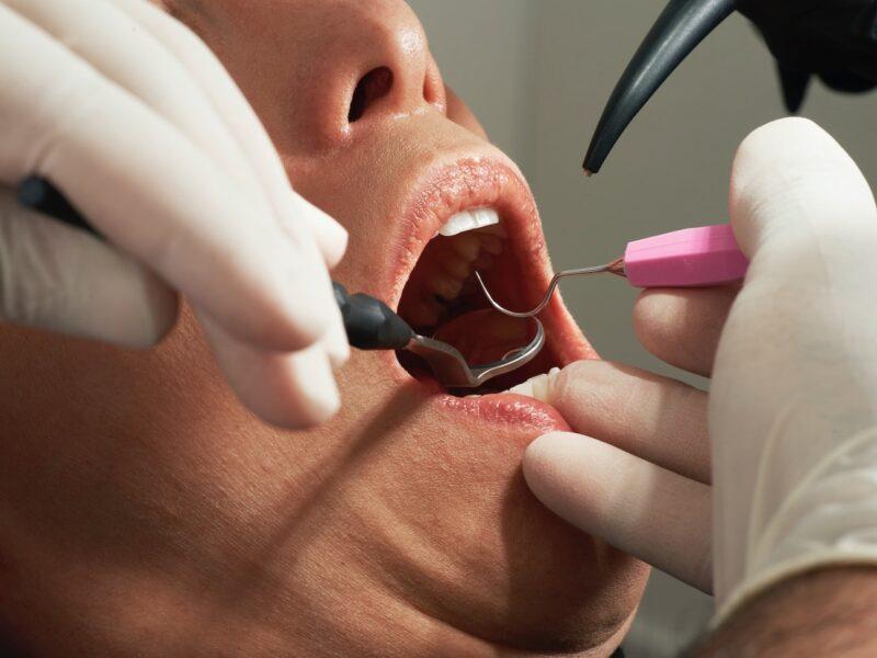 Person having dental work done